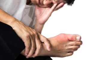 Enfermedades causadas por el exceso de ácido úrico