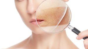 Efectos secundarios del ácido retinoico
