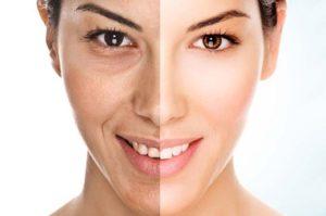 Usos y beneficios del ácido retinoico