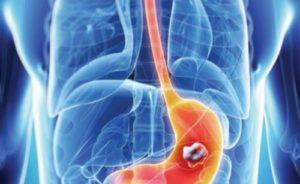 Otros efectos del ácido yodhídrico sobre el organismo