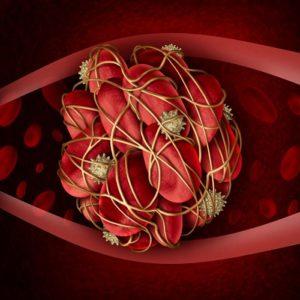 Usos del ácido tranexámico Coagulos sanguínreos