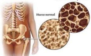 uso del ácido zoledrónico. Osteoporosis