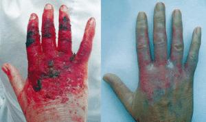 historia del ácido hipocloroso Neutroderm