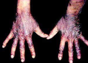 historia del ácido nicotínico. Pelagra